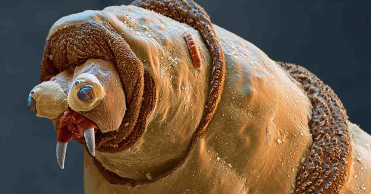 What do germs look like under a microscope